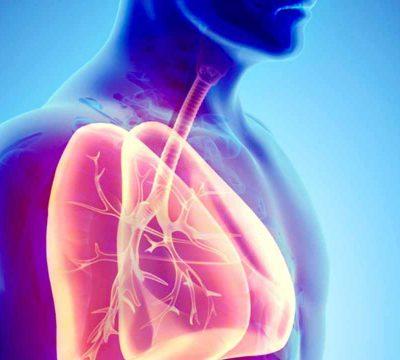 Viêm đường hô hấp dưới: Nguyên nhân, triệu chứng, chẩn đoán và điều trị